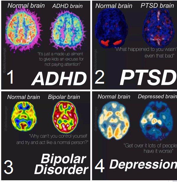 Enxergando as doenças mentais